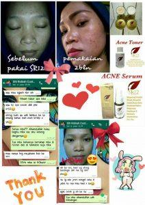 testimoni acne serum sr12